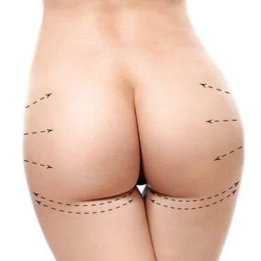 implante de gluteo renovarte cirugia plastica-3