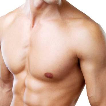 implante de pectorales renovarte cirugia plastica