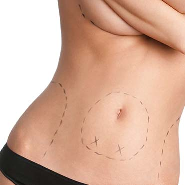 liposuccion renovarte cirugia plastica-2